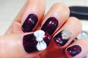 Glitter in the dark purple gel cast along with white accents create 3D magic from Binh's Nails.